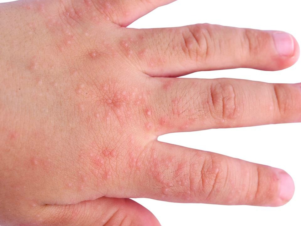 Allergia su pelle neurodermatitis